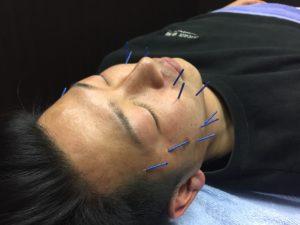 実は男性にも人気なんです、美顔鍼灸!